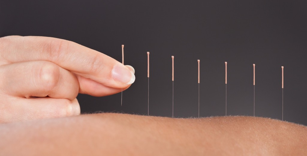 acupuncture-anxiety